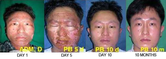 Second degree burn facial scar toddler